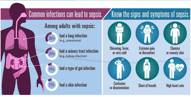 Sepsis symptoms