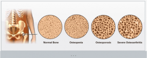 Continuum of Osteoporosis